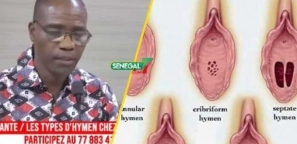 Les différents types d'hymen selon docteur Moustapha SECK: « lan moy ndaw ak nan leu ndaw di bindow »